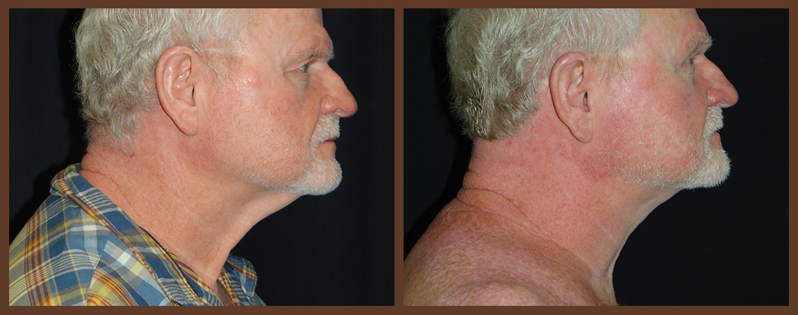 necklift-before-and-after-1-virginia-beach-plastic-surgeon-VA-0116-denk