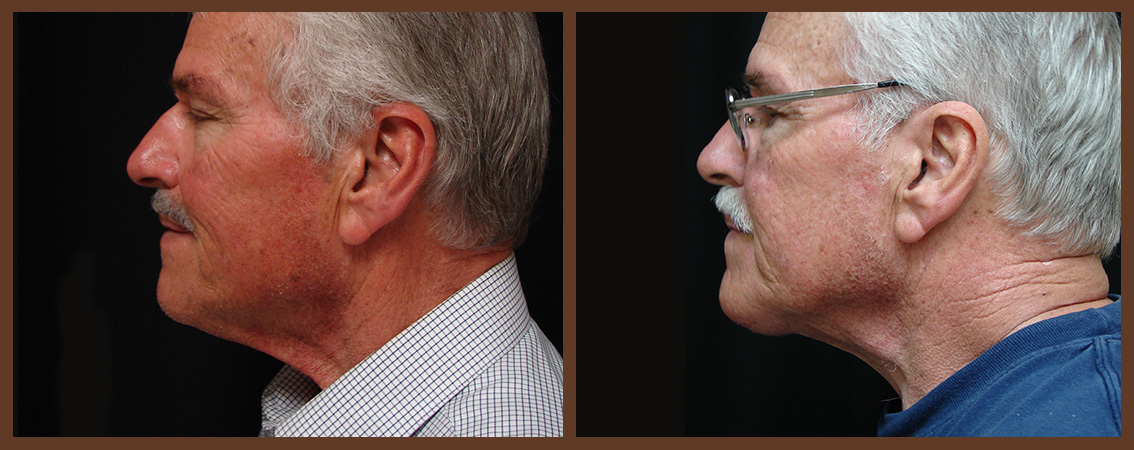 necklift-before-and-after-1-virginia-beach-plastic-surgeon-VA-0117-denk