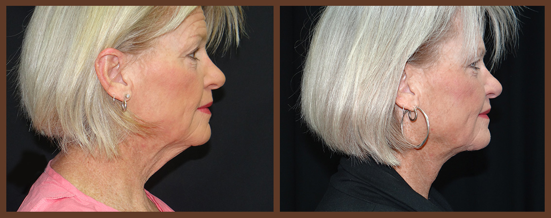 necklift-before-and-after-1-virginia-beach-plastic-surgeon-VA-0118-denk