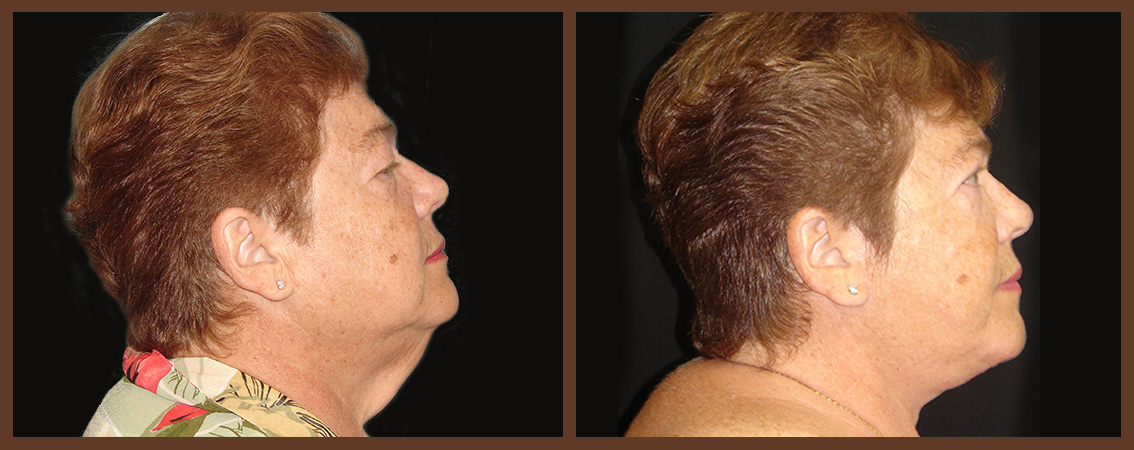 necklift-before-and-after-1-virginia-beach-plastic-surgeon-VA-0119-denk
