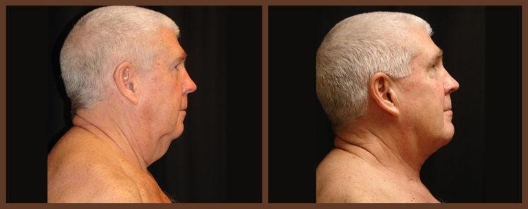 necklift-before-and-after-1-virginia-beach-plastic-surgeon-VA-0120-denk