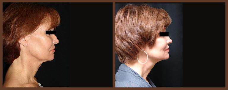 necklift-before-and-after-1-virginia-beach-plastic-surgeon-VA-0121-denk