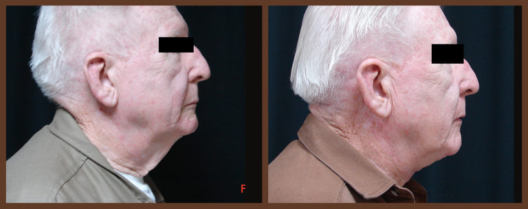necklift-before-and-after-1-virginia-beach-plastic-surgeon-VA-0122-JSA