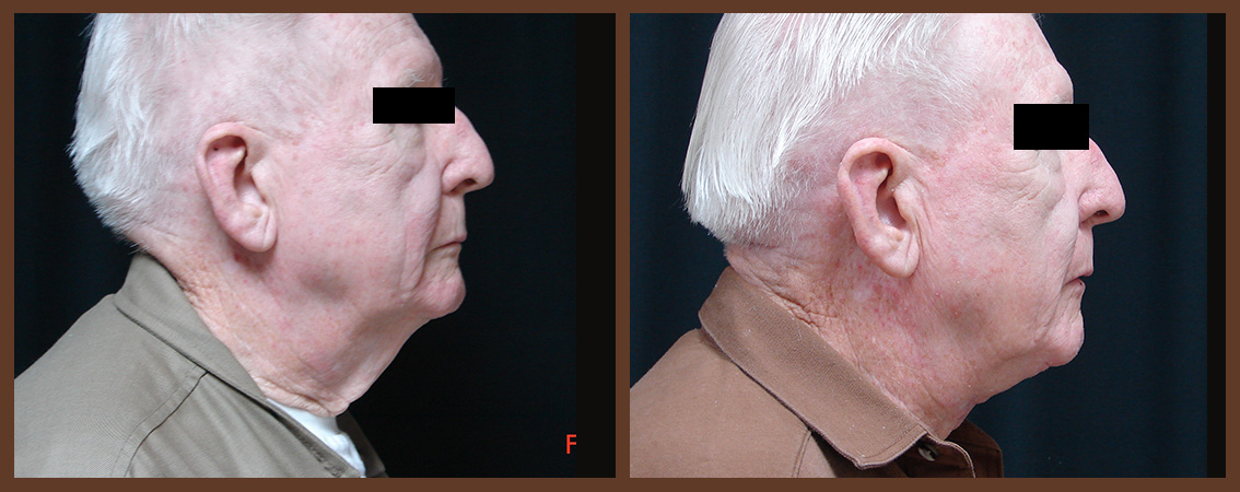 necklift-before-and-after-1-virginia-beach-plastic-surgeon-VA-0122-JSA