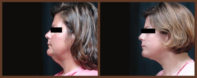 necklift-before-and-after-1-virginia-beach-plastic-surgeon-VA-0123-JSA