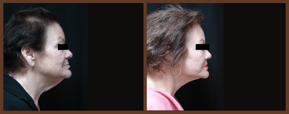 necklift-before-and-after-1-virginia-beach-plastic-surgeon-VA-0124-JSA