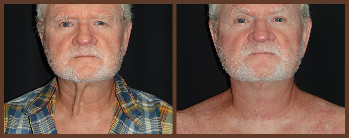 necklift-before-and-after-2-virginia-beach-plastic-surgeon-VA-0116-denk