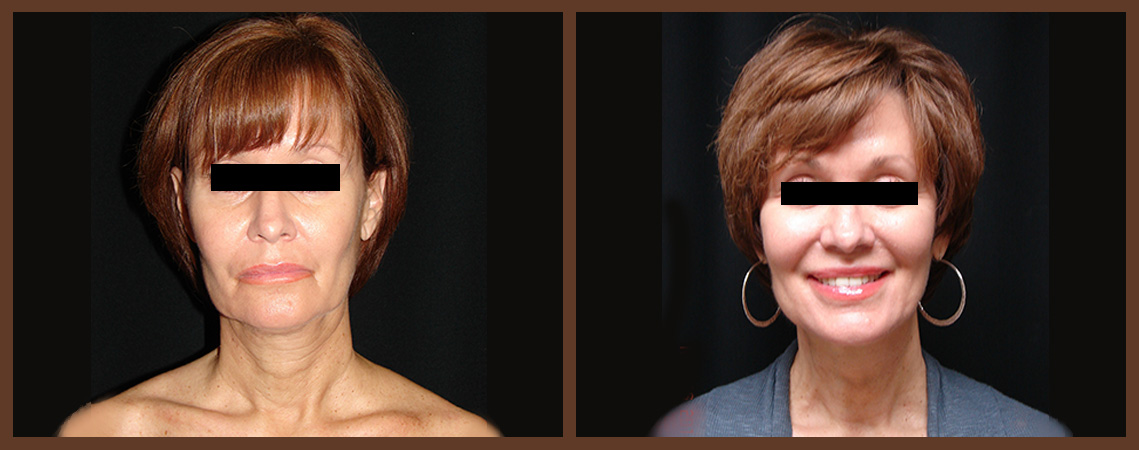 necklift-before-and-after-2-virginia-beach-plastic-surgeon-VA-0121-denk