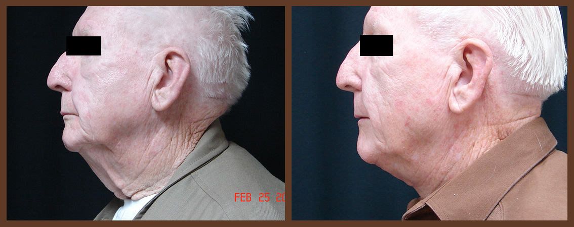 necklift-before-and-after-2-virginia-beach-plastic-surgeon-VA-0122-JSA