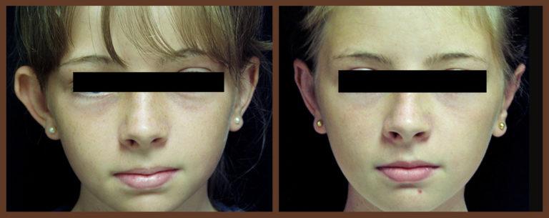 otoplasty-before-and-after-1-virginia-beach-plastic-surgeon-VA-0125-denk