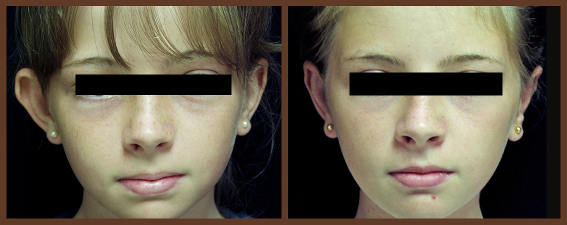 otoplasty-before-and-after-1-virginia-beach-plastic-surgeon-VA-0125-denk