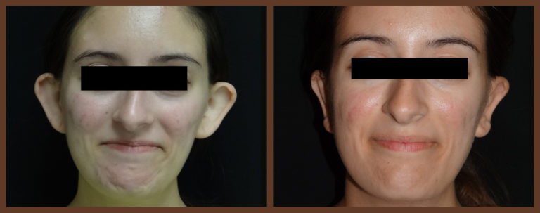 otoplasty-before-and-after-1-virginia-beach-plastic-surgeon-VA-0127-jacobs