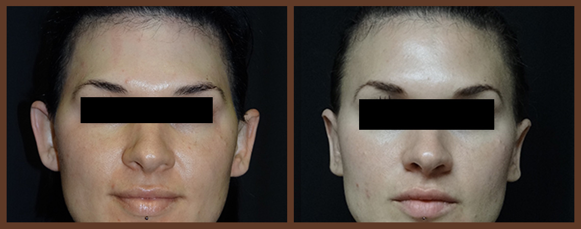 otoplasty-before-and-after-1-virginia-beach-plastic-surgeon-VA-0128-jacobs