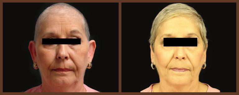 otoplasty-before-and-after-1-virginia-beach-plastic-surgeon-VA-0129-JSA