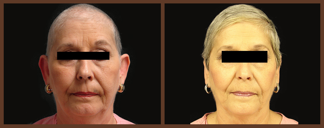 otoplasty-before-and-after-1-virginia-beach-plastic-surgeon-VA-0129-JSA