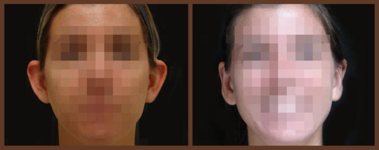 otoplasty-before-and-after-1-virginia-beach-plastic-surgeon-VA-0130-JSA
