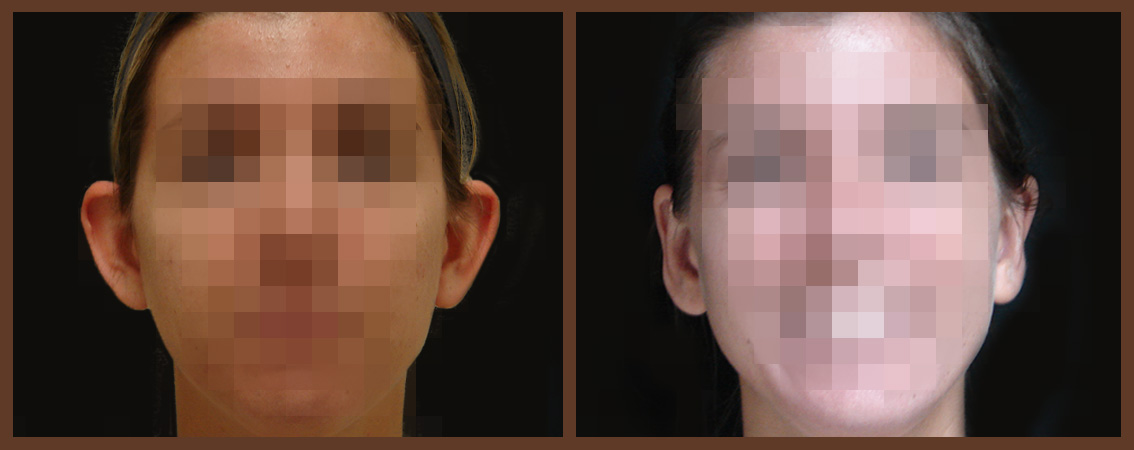 otoplasty-before-and-after-1-virginia-beach-plastic-surgeon-VA-0130-JSA