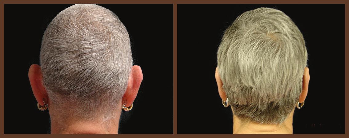 otoplasty-before-and-after-2-virginia-beach-plastic-surgeon-VA-0129-JSA