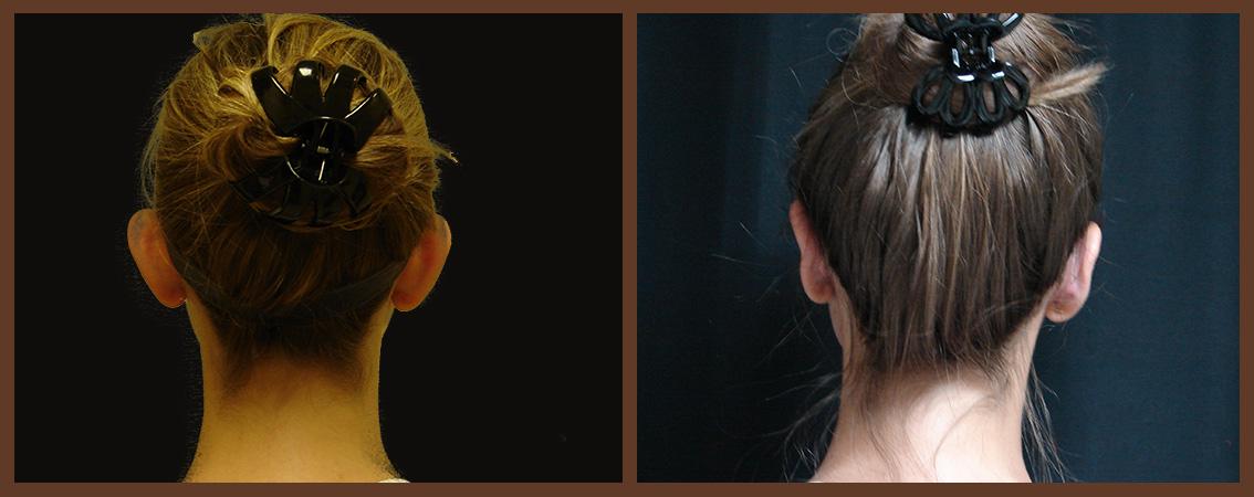 otoplasty-before-and-after-2-virginia-beach-plastic-surgeon-VA-0130-JSA