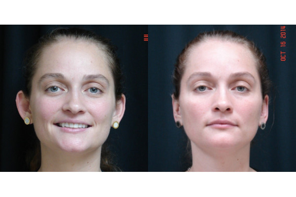 otoplasty-before-and-after-virginia-beach-plastic-surgeon-VA-101-