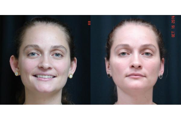 otoplasty-before-and-after-virginia-beach-plastic-surgeon-VA-101-