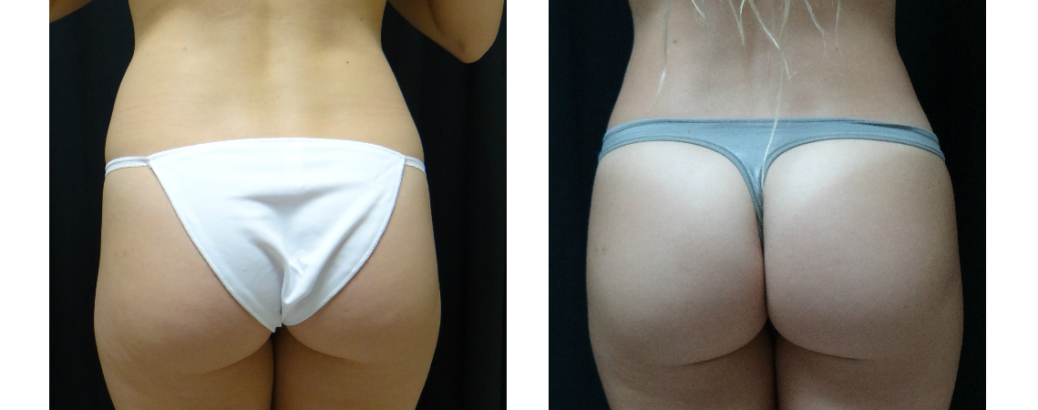 post-op-liposuction-of-abdomen-with-fat-grafting-to-hips-virginia-beach-plastic-surgeon