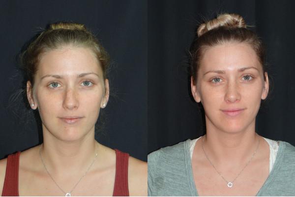 rhinoplasty-before-and-afer-2-virginia-beach-plastic-surgeon-VA-Denk