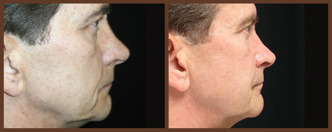 rhinoplasty-before-and-after-1-virginia-beach-plastic-surgeon-VA-0111-denk