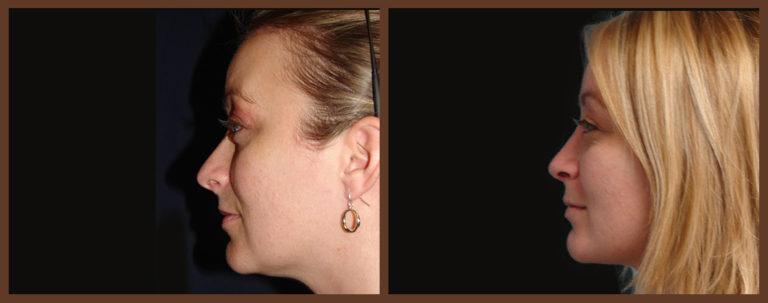 rhinoplasty-before-and-after-1-virginia-beach-plastic-surgeon-VA-0112-denk