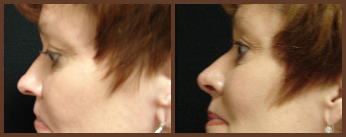 rhinoplasty-before-and-after-1-virginia-beach-plastic-surgeon-VA-0113-jacobs