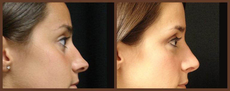 rhinoplasty-before-and-after-1-virginia-beach-plastic-surgeon-VA-0114-JSA