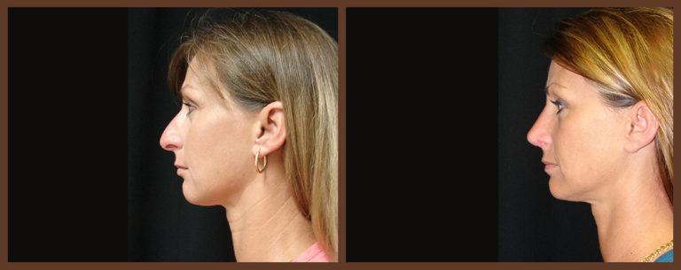 rhinoplasty-before-and-after-1-virginia-beach-plastic-surgeon-VA-0115-JSA