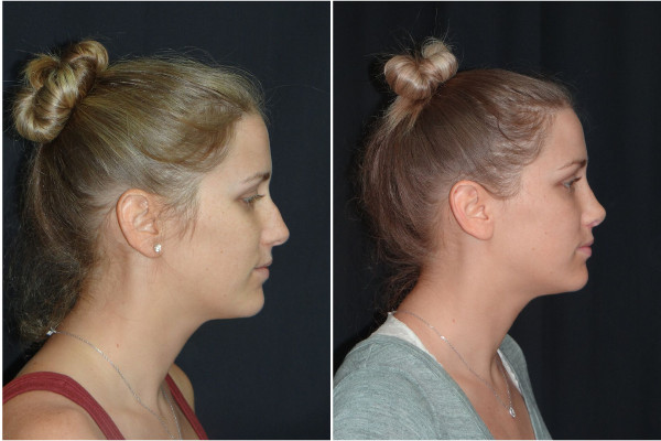 rhinoplasty-before-and-after-1-virginia-beach-plastic-surgeon-VA-Denk