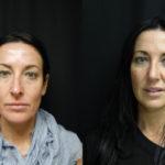 Rhinoplasty For Projection and Shape