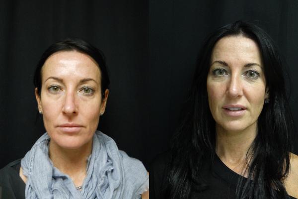 rhinoplasty-before-and-after-1-virginia-beach-plastic-surgeon-VA-jacobs-23988
