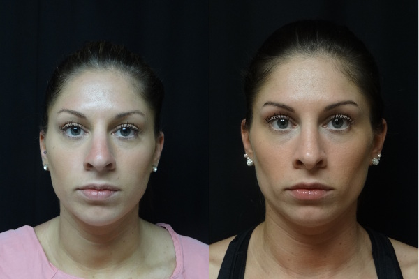 rhinoplasty-before-and-after-1-virginia-beach-plastic-surgeon-VA-jacobs-8054