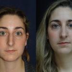 Rhinoplasty For Nasal Bridge Correction