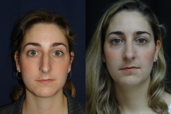rhinoplasty-before-and-after-1-virginia-beach-plastic-surgeon-va-12635-jacobs