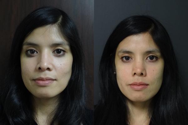 rhinoplasty-before-and-after-1-virginia-beach-plastic-surgeon-va-jacobs-15488
