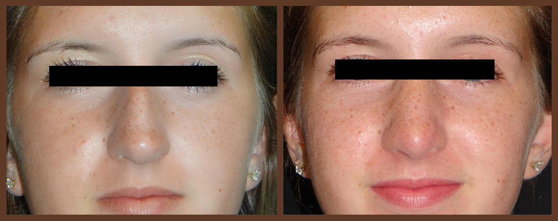 rhinoplasty-before-and-after-2-virginia-beach-plastic-surgeon-VA-0110-denk