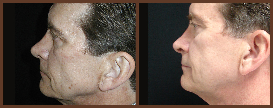 rhinoplasty-before-and-after-2-virginia-beach-plastic-surgeon-VA-0111-denk