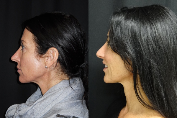 rhinoplasty-before-and-after-2-virginia-beach-plastic-surgeon-VA-jacobs-23988