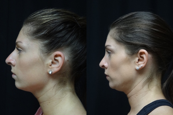 rhinoplasty-before-and-after-2-virginia-beach-plastic-surgeon-VA-jacobs-8054