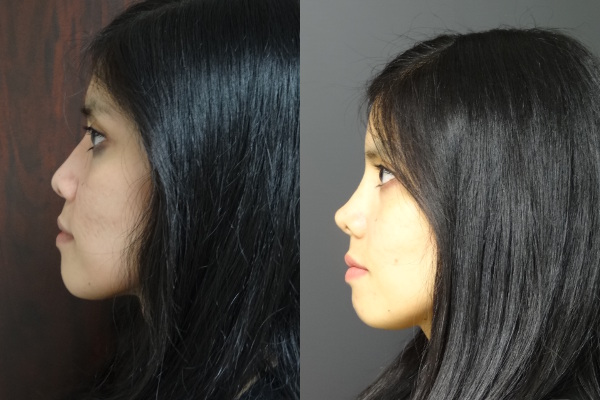 rhinoplasty-before-and-after-2-virginia-beach-plastic-surgeon-va-jacobs-15488