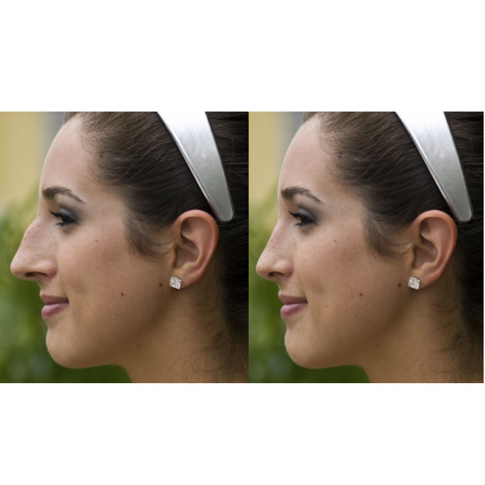 rhinoplasty-virginia-beach