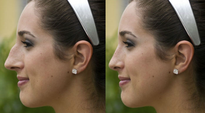 Important Things To Know About Rhinoplasty Surgery Or Facial Surgery