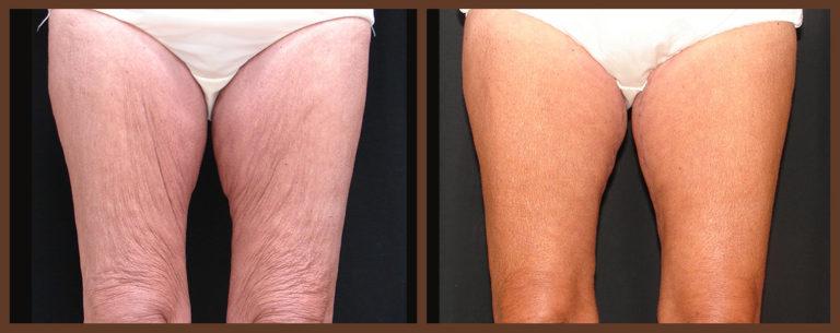 thighlift-before-and-after-1-virginia-beach-plastic-surgeon-VA-0104-JSA