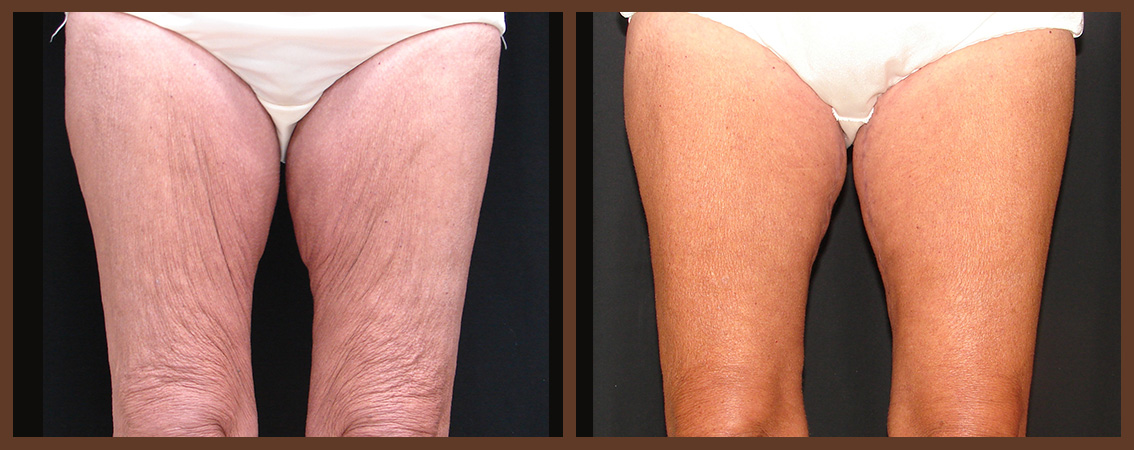 thighlift-before-and-after-1-virginia-beach-plastic-surgeon-VA-0104-JSA