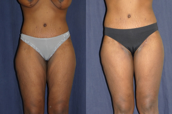 thighlift-before-and-after-1-virginia-beach-plastic-surgeon-VA-Denk