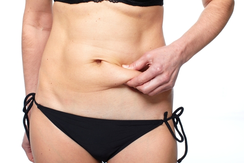 Tummy-Tuck-Virginia-Beach-VA